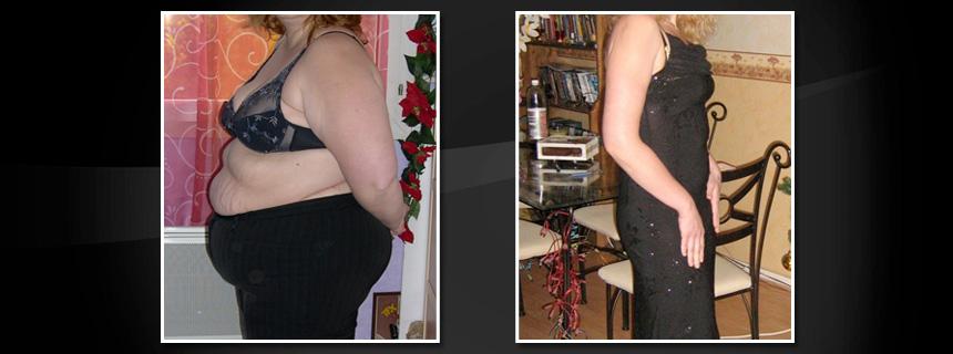Résultat après opération et body lift. L'opération réduit la masse corporelle mais laisse un excédent de peau. Le body lift est une opération esthétique qui vous permet de récupérer un corps normal.